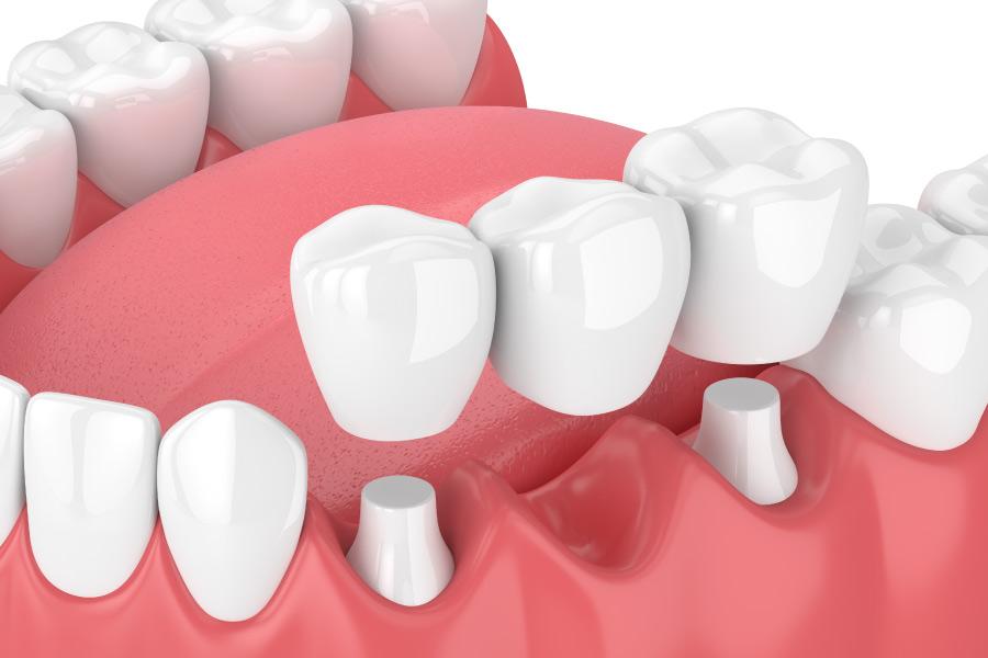 Model showing a dental bridge