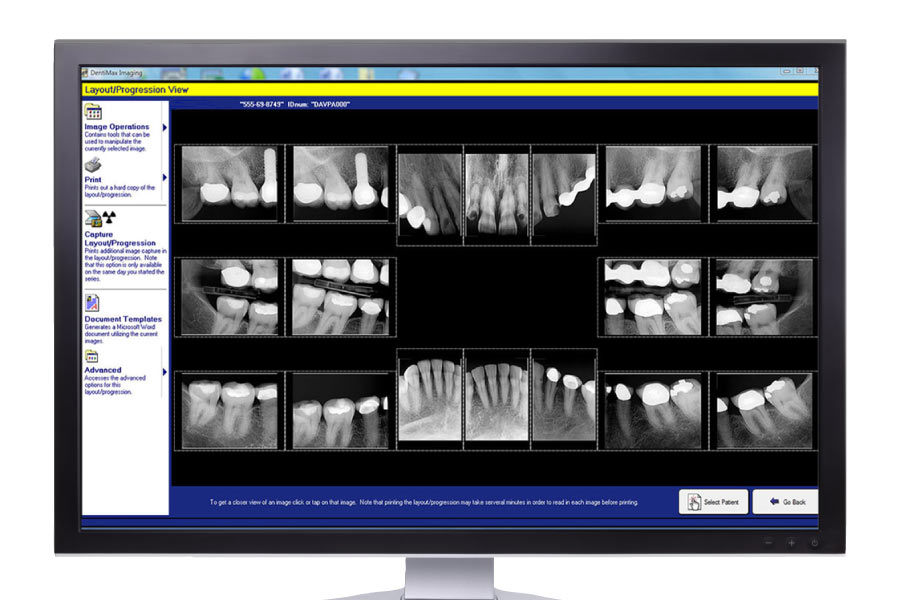 Computer screen showing a variety of digital dental X-rays.