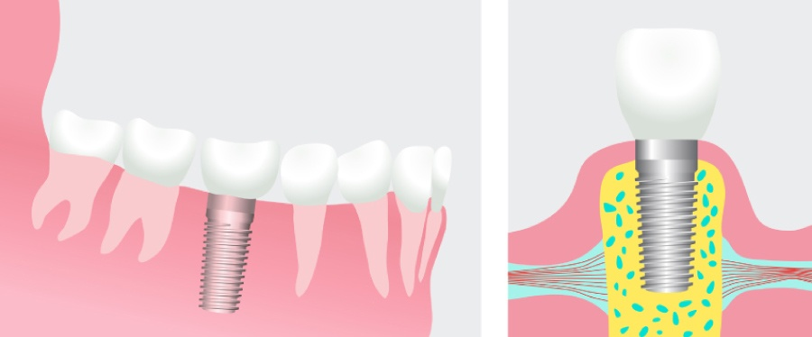Graphic showing a dental implant in one frame and topped with a dental restoration in the next frame.